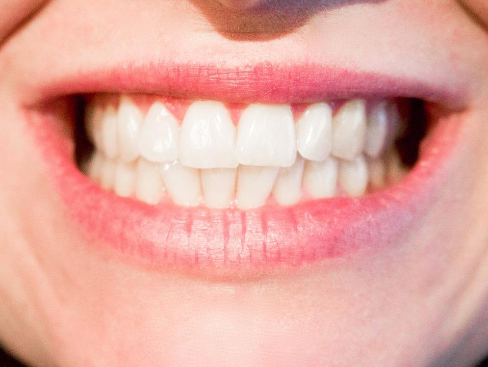Met Uw Nederlandse verzekering naar onze tandartsen